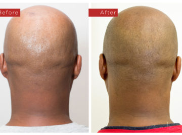 Sulema Permanent Makeup Portfolio - Scalp Micropigmentation