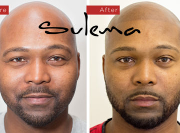 Sulema Permanent Makeup Studio - Scalp Micropigmentation